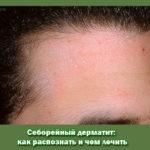 Себорейный дерматит: как распознать и чем лечить